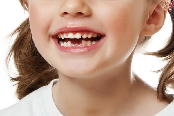 missing_teeth